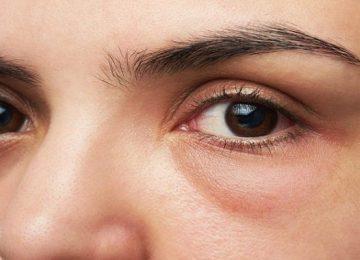 आंखों से फैलता है कोरोना