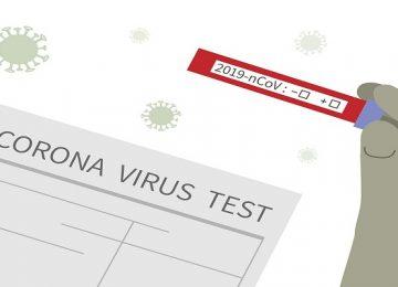 कोरोना वायरस सैम्पल जांच